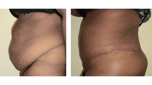 abdominoplastie avant apres 5 abdominoplastie paris abdominoplastie prise en charge chirurgie esthetique corps intervention esthetique chirurgien plasticien paris 16