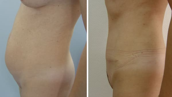 abdominoplastie avant apres 6 abdominoplastie paris abdominoplastie prise en charge chirurgie esthetique corps intervention esthetique chirurgien plasticien paris 16