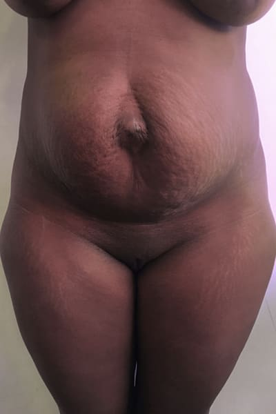abdominoplastie avant apres abdominoplastie paris abdominoplastie prise en charge chirurgie esthetique corps intervention esthetique chirurgien plasticien paris 16 apres 1