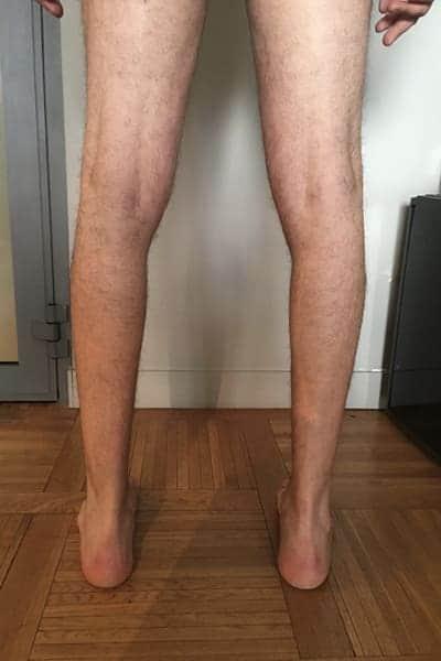 Before-Implant mollet avant après