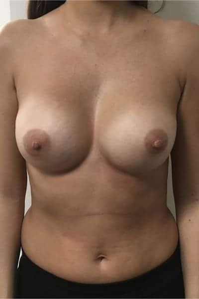 avant apres changement protheses mammaires remplacement protheses mammaires ablation protheses mammaires chirurgie mammaire chirurgien plasticien paris 16 apres 1
