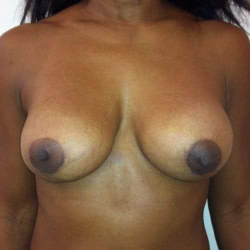 avant apres changement protheses mammaires remplacement protheses mammaires ablation protheses mammaires chirurgie mammaire chirurgien plasticien paris 16 apres 2