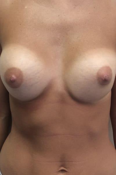 avant apres changement protheses mammaires remplacement protheses mammaires ablation protheses mammaires chirurgie mammaire chirurgien plasticien paris 16 avant 1