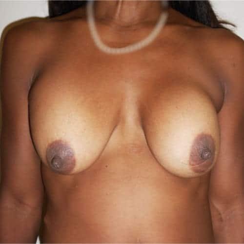 avant apres changement protheses mammaires remplacement protheses mammaires ablation protheses mammaires chirurgie mammaire chirurgien plasticien paris 16 avant 2
