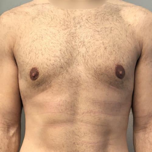 avant apres gynecomastie homme gynecomastie prix gynecomastie traitement gynecomastie operation chirurgie mammaire chirurgien plasticien paris 16 apres 2