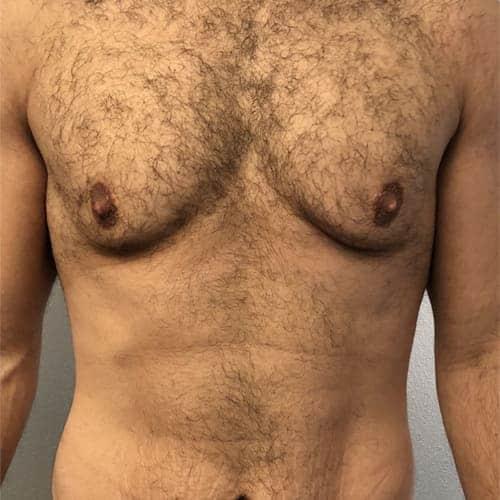 avant apres gynecomastie homme gynecomastie prix gynecomastie traitement gynecomastie operation chirurgie mammaire chirurgien plasticien paris 16 avant 2