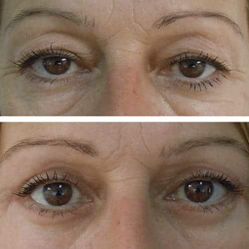 blepharoplastie avant apres 1 blepharoplastie paris chirurgie des paupieres paris chirurgie esthetique visage chirurgien plasticien paris 16