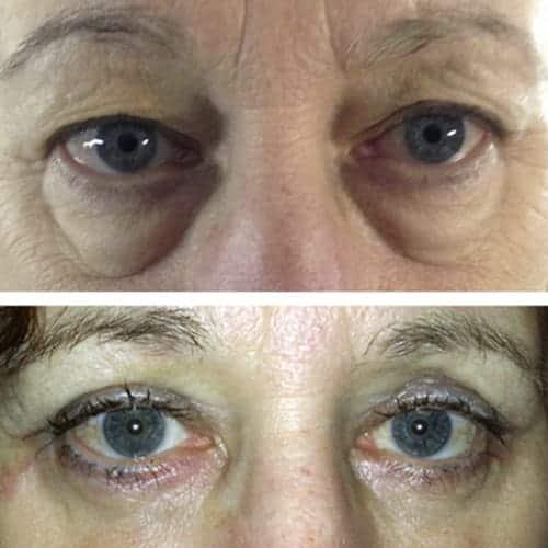 blepharoplastie avant apres 2 blepharoplastie paris chirurgie des paupieres paris chirurgie esthetique visage chirurgien plasticien paris 16