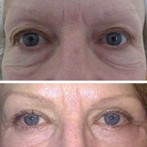 blepharoplastie avant apres 3 blepharoplastie paris chirurgie des paupieres paris chirurgie esthetique visage chirurgien plasticien paris 16