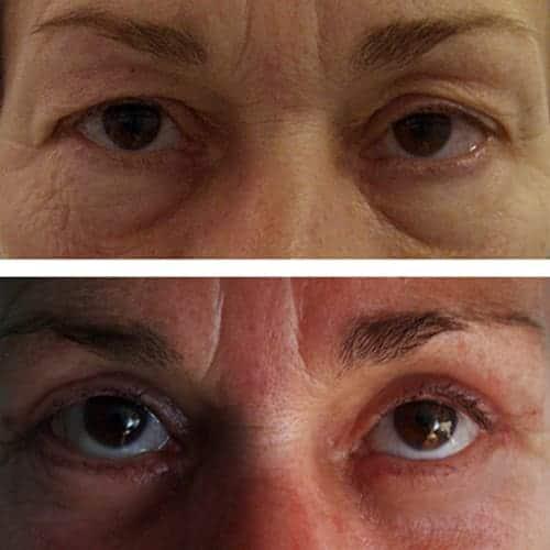 blepharoplastie avant apres 4 blepharoplastie paris chirurgie des paupieres paris chirurgie esthetique visage chirurgien plasticien paris 16