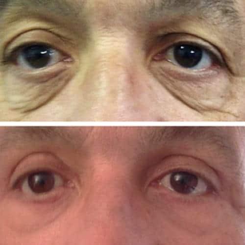 blepharoplastie avant apres 5 blepharoplastie paris chirurgie des paupieres paris chirurgie esthetique visage chirurgien plasticien paris 16