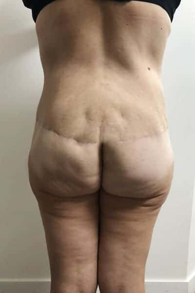 After-Bodylift avant - après