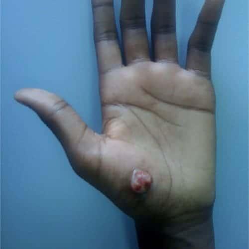 botriomycome tumeur benigne de la peau tumeur benigne peau photo tumeur de la peau symptomes chirurgie dermatologique chirurgien plasticien paris 16