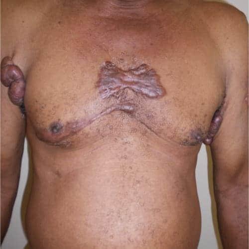 cheloide tumeur benigne de la peau tumeur benigne peau photo tumeur de la peau symptomes chirurgie dermatologique chirurgien plasticien paris 16