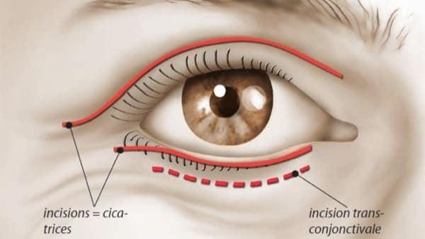 cicatrice blepharoplastie paris blepharoplastie avant apres chirurgie des paupieres paris chirurgie esthetique visage chirurgien plasticien paris 16