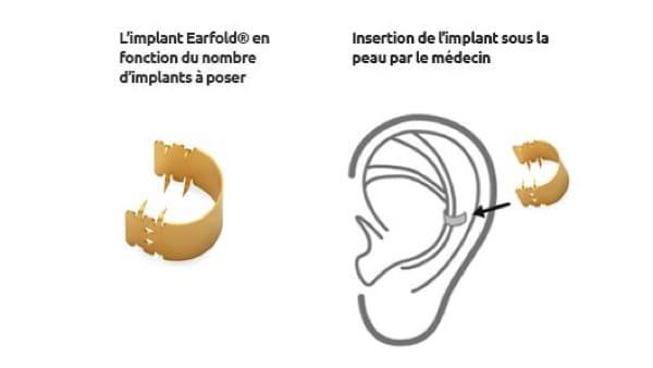 earfold otoplastie prix otoplastie paris otoplastie remboursee chirurgie oreilles decollees chirurgie esthetique visage chirurgien plasticien paris 16