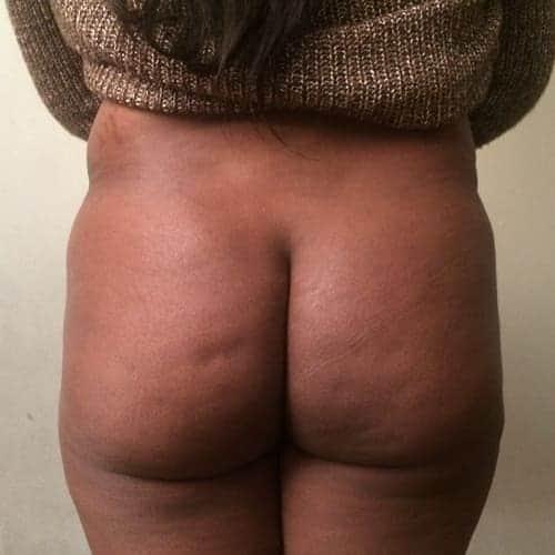 lipofilling fessier avant apres brazilian butt lift lipofilling fessier paris chirurgie esthetique intervention esthetique corps chirurgien plasticien paris 16 avant 1