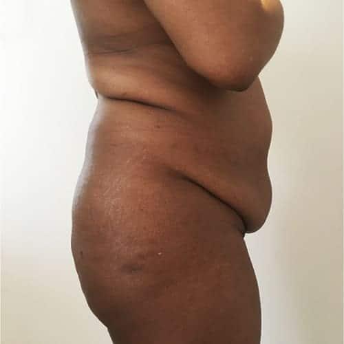 lipofilling fessier avant apres brazilian butt lift lipofilling fessier paris chirurgie esthetique intervention esthetique corps chirurgien plasticien paris 16 avant 2