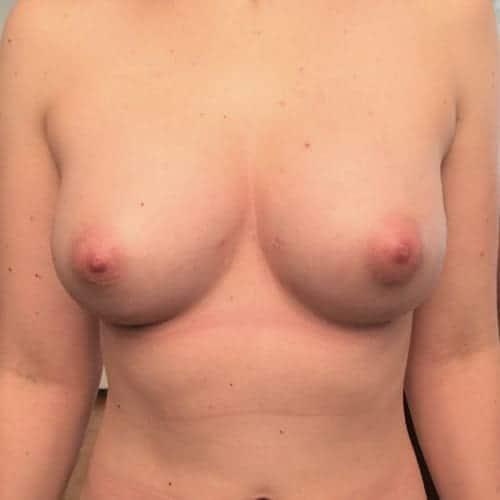 lipofilling mammaire avant apres lipofilling mammaire paris augmentation mammaire avec graisse chirurgie mammaire chirurgie esthetique chirurgien plasticien paris 16 apres 1