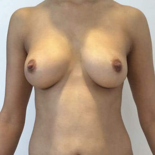 lipofilling mammaire avant apres lipofilling mammaire paris augmentation mammaire avec graisse chirurgie mammaire chirurgie esthetique chirurgien plasticien paris 16 apres 2