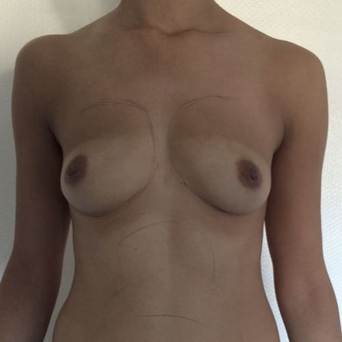 lipofilling mammaire avant apres lipofilling mammaire paris augmentation mammaire avec graisse chirurgie mammaire chirurgie esthetique chirurgien plasticien paris 16 avant 2