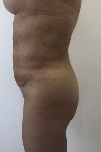 liposuccion avant apres liposuccion avis lipoaspiration homme chirurgie esthetique corps intervention esthetique chirurgien plasticien paris 16 apres 1