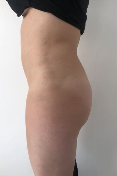 liposuccion avant apres liposuccion avis lipoaspiration homme chirurgie esthetique corps intervention esthetique chirurgien plasticien paris 16 apres 2