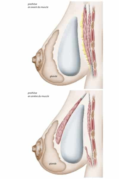 loge implant changement protheses mammaires remplacement protheses mammaires ablation protheses mammaires chirurgie mammaire chirurgien plasticien paris 16