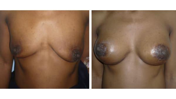 protheses mammaires avant apres 1 protheses mammaires paris implant mammaire paris chirurgie mammaire chirurgie esthetique chirurgien plasticien paris 16