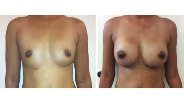 protheses mammaires avant apres 10 protheses mammaires paris implant mammaire paris chirurgie mammaire chirurgie esthetique chirurgien plasticien paris 16