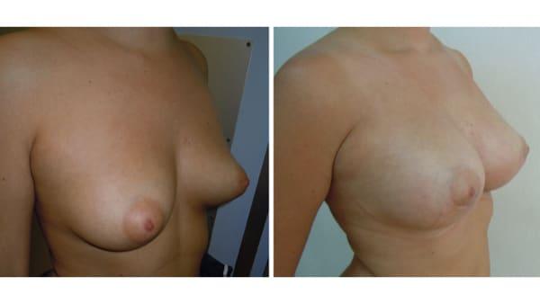 protheses mammaires avant apres 11 protheses mammaires paris implant mammaire paris chirurgie mammaire chirurgie esthetique chirurgien plasticien paris 16