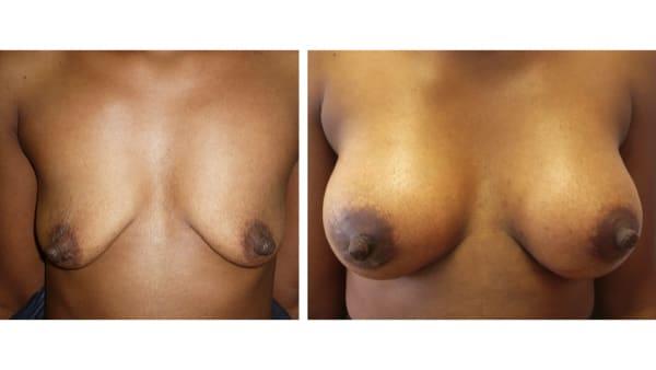 protheses mammaires avant apres 12 protheses mammaires paris implant mammaire paris chirurgie mammaire chirurgie esthetique chirurgien plasticien paris 16
