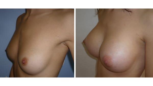 protheses mammaires avant apres 3 protheses mammaires paris implant mammaire paris chirurgie mammaire chirurgie esthetique chirurgien plasticien paris 16