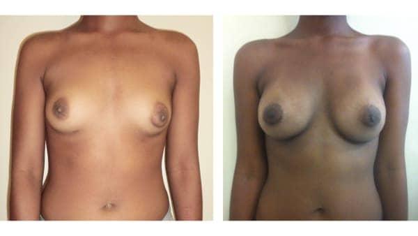 protheses mammaires avant apres 4 protheses mammaires paris implant mammaire paris chirurgie mammaire chirurgie esthetique chirurgien plasticien paris 16
