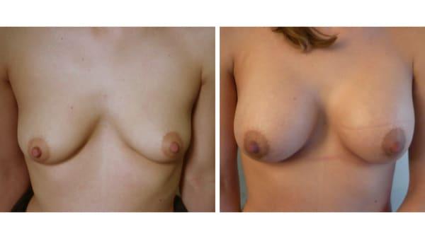 protheses mammaires avant apres 6 protheses mammaires paris implant mammaire paris chirurgie mammaire chirurgie esthetique chirurgien plasticien paris 16