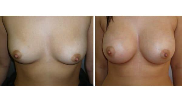 protheses mammaires avant apres 7 protheses mammaires paris implant mammaire paris chirurgie mammaire chirurgie esthetique chirurgien plasticien paris 16
