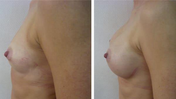 protheses mammaires avant apres 8 protheses mammaires paris implant mammaire paris chirurgie mammaire chirurgie esthetique chirurgien plasticien paris 16