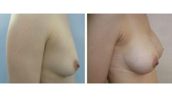 protheses mammaires avant apres 9 protheses mammaires paris implant mammaire paris chirurgie mammaire chirurgie esthetique chirurgien plasticien paris 16