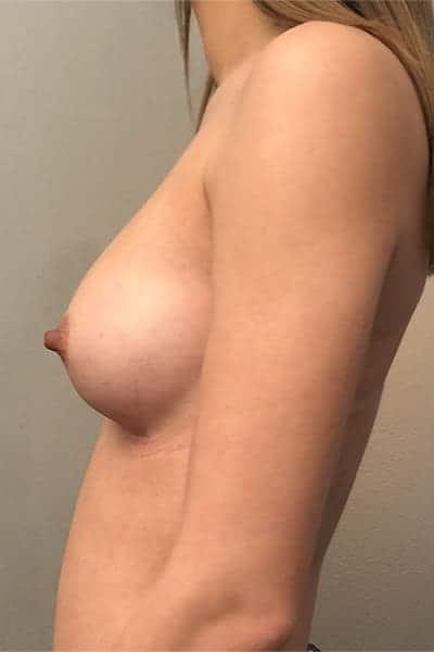 protheses mammaires avant apres protheses mammaires paris implant mammaire paris chirurgie mammaire chirurgie esthetique chirurgien plasticien paris 16 apres 17