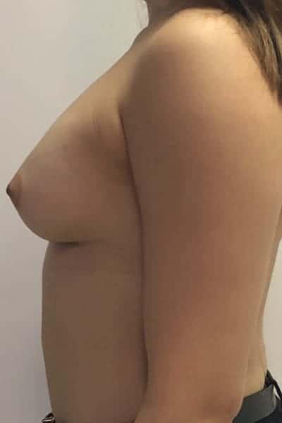 protheses mammaires avant apres protheses mammaires paris implant mammaire paris chirurgie mammaire chirurgie esthetique chirurgien plasticien paris 16 apres 20