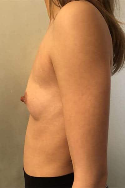 protheses mammaires avant apres protheses mammaires paris implant mammaire paris chirurgie mammaire chirurgie esthetique chirurgien plasticien paris 16 avant 17
