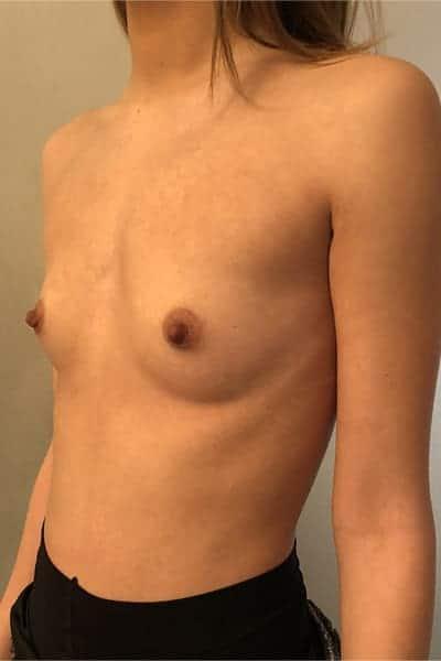protheses mammaires avant apres protheses mammaires paris implant mammaire paris chirurgie mammaire chirurgie esthetique chirurgien plasticien paris 16 avant 18