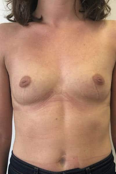 protheses mammaires avant apres protheses mammaires paris implant mammaire paris chirurgie mammaire chirurgie esthetique chirurgien plasticien paris 16 avant 19
