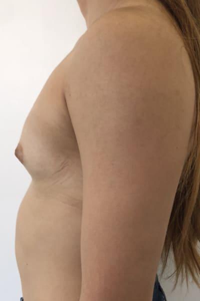 protheses mammaires avant apres protheses mammaires paris implant mammaire paris chirurgie mammaire chirurgie esthetique chirurgien plasticien paris 16 avant 20