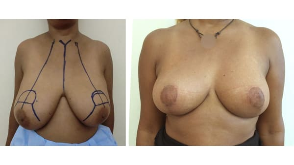 ptose mammaire avant apres 1 ptose mammaire prix ptose mammaire cicatrice ptose mammaire paris chirurgie mammaire chirurgien plasticien paris 16