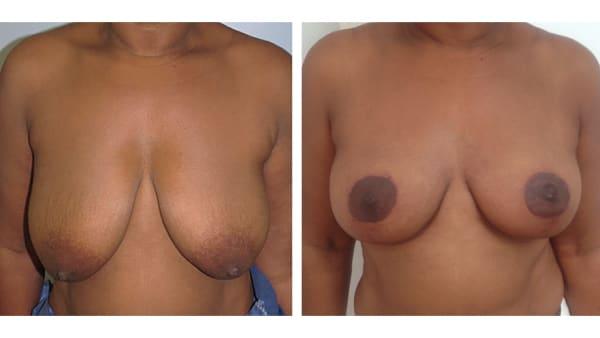 ptose mammaire avant apres 10 ptose mammaire prix ptose mammaire cicatrice ptose mammaire paris chirurgie mammaire chirurgien plasticien paris 16