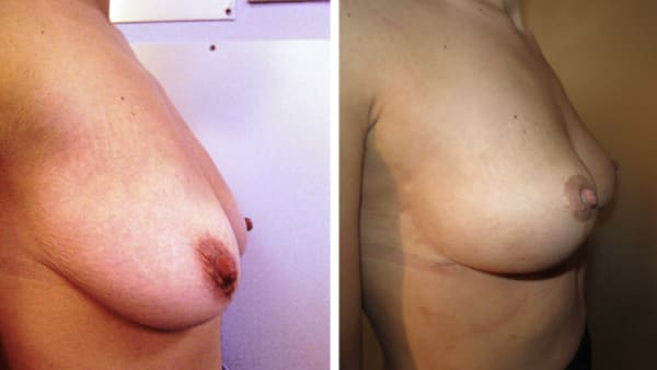 ptose mammaire avant apres 11 ptose mammaire prix ptose mammaire cicatrice ptose mammaire paris chirurgie mammaire chirurgien plasticien paris 16