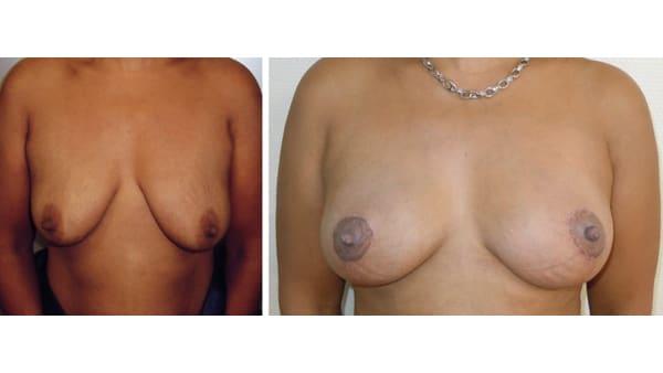 ptose mammaire avant apres 12 ptose mammaire prix ptose mammaire cicatrice ptose mammaire paris chirurgie mammaire chirurgien plasticien paris 16