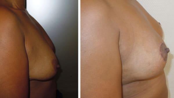 ptose mammaire avant apres 13 ptose mammaire prix ptose mammaire cicatrice ptose mammaire paris chirurgie mammaire chirurgien plasticien paris 16