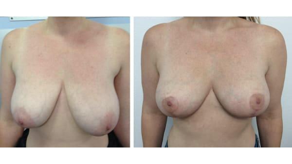 ptose mammaire avant apres 14 ptose mammaire prix ptose mammaire cicatrice ptose mammaire paris chirurgie mammaire chirurgien plasticien paris 16